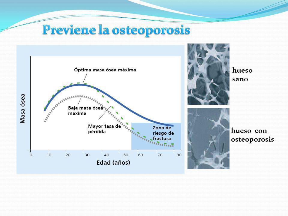 Previene la osteoporosis