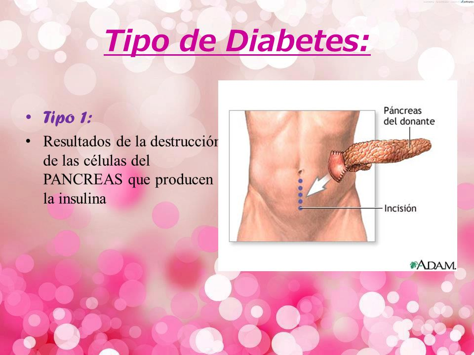 Tipo de Diabetes: Tipo 1: