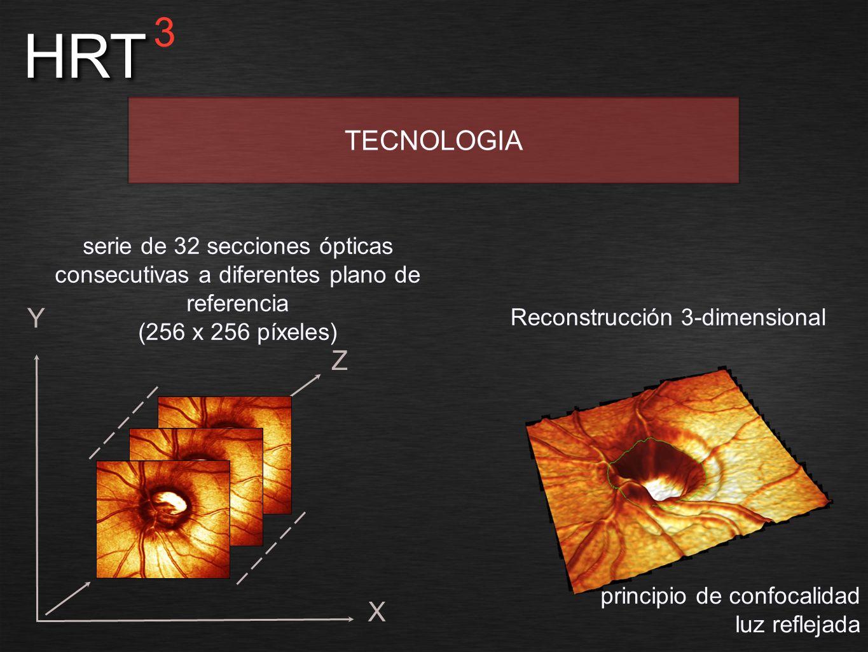 Reconstrucción 3-dimensional