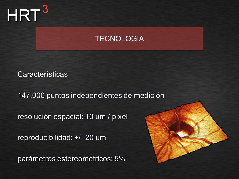 HRT 3 TECNOLOGIA Características