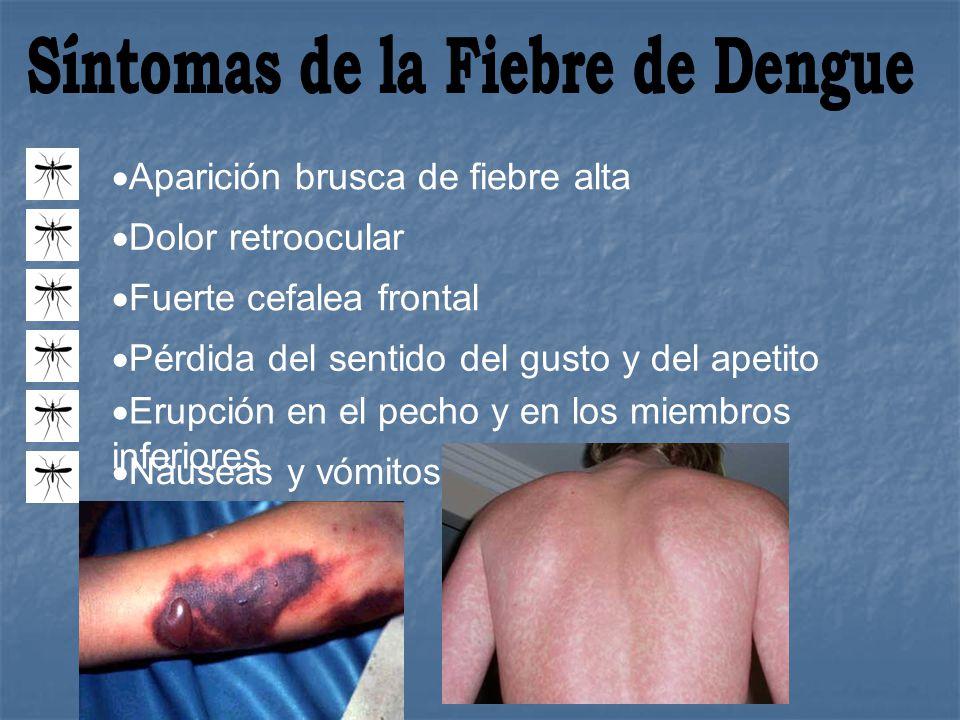 Síntomas de la Fiebre de Dengue