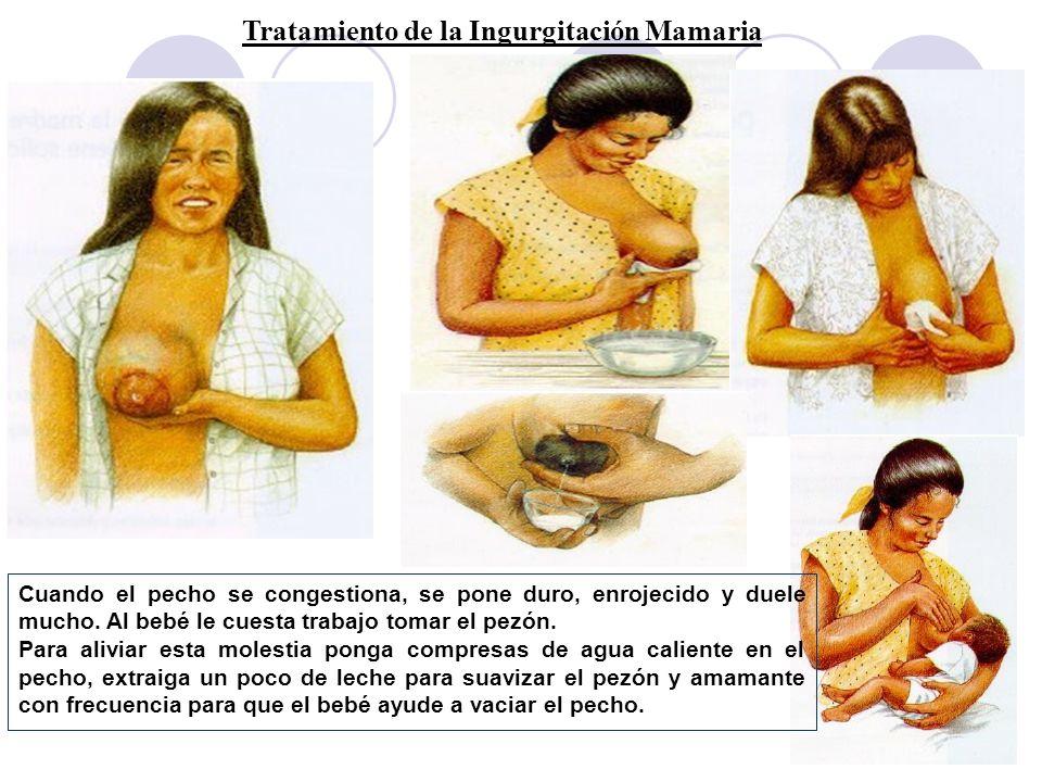 Tratamiento de la Ingurgitación Mamaria