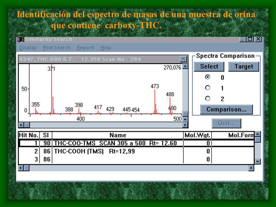 Identificación del espectro de masas de una muestra de orina