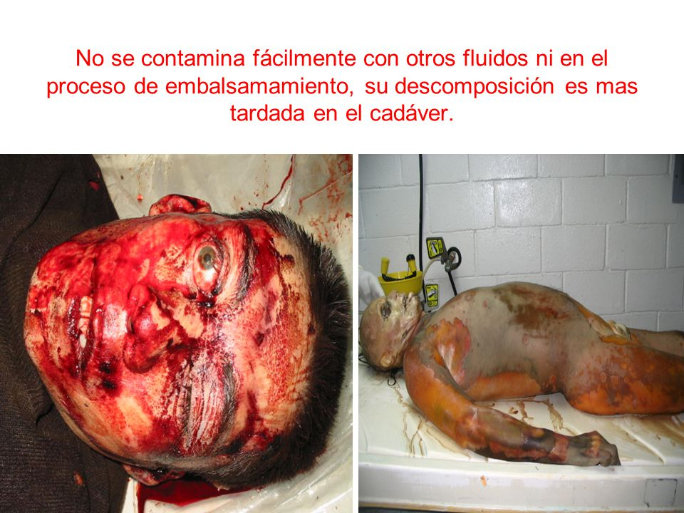 No se contamina fácilmente con otros fluidos ni en el proceso de embalsamamiento, su descomposición es mas tardada en el cadáver.