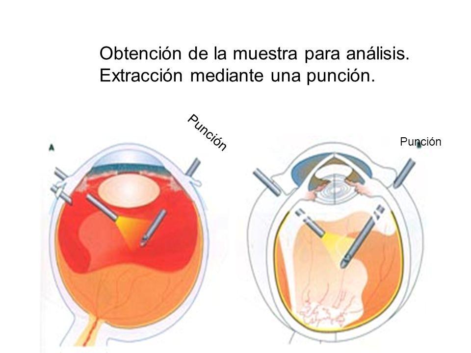 Obtención de la muestra para análisis. Extracción mediante una punción.