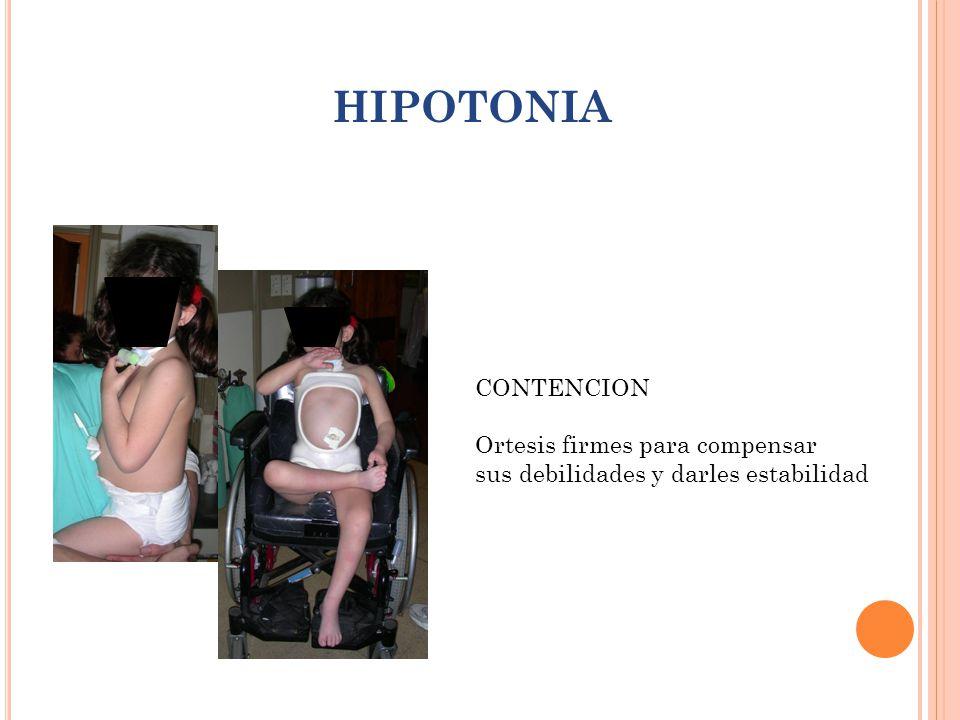 HIPOTONIA CONTENCION Ortesis firmes para compensar