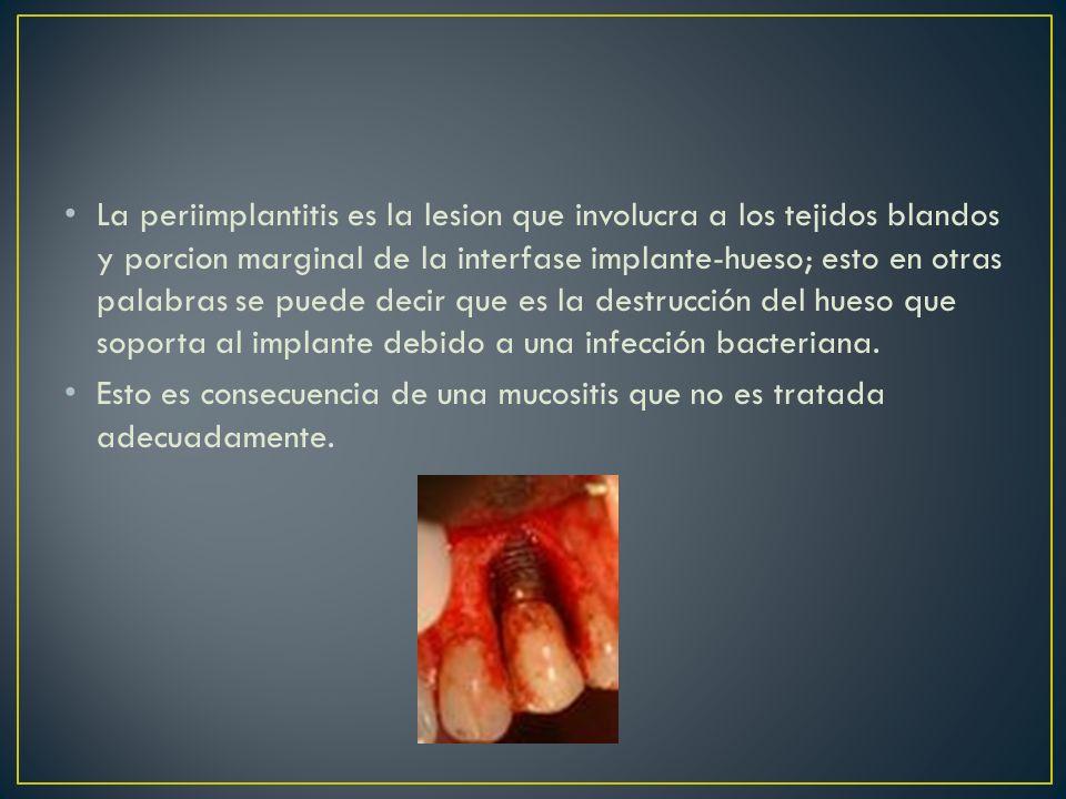 La periimplantitis es la lesion que involucra a los tejidos blandos y porcion marginal de la interfase implante-hueso; esto en otras palabras se puede decir que es la destrucción del hueso que soporta al implante debido a una infección bacteriana.