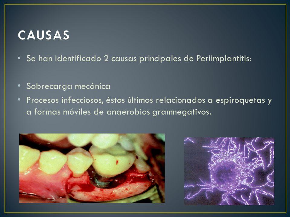 CAUSAS Se han identificado 2 causas principales de Periimplantitis: