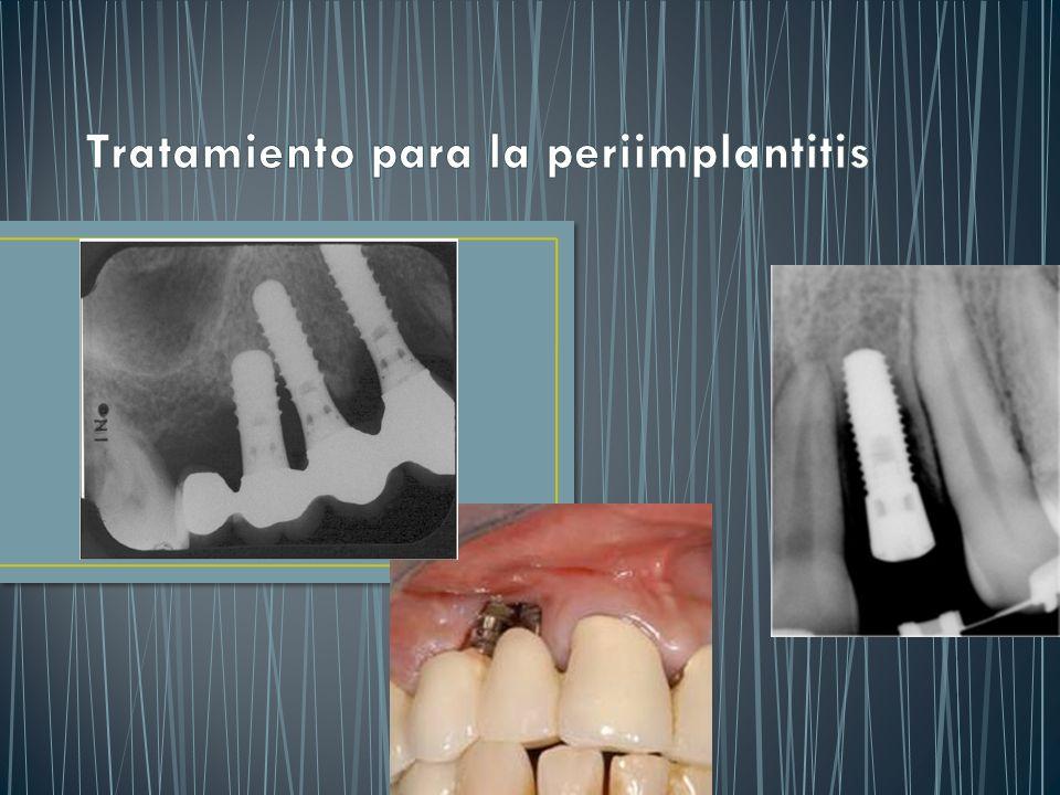 Tratamiento para la periimplantitis