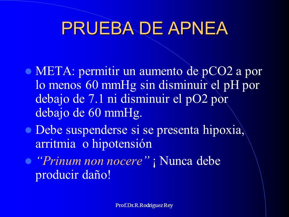 PRUEBA DE APNEA