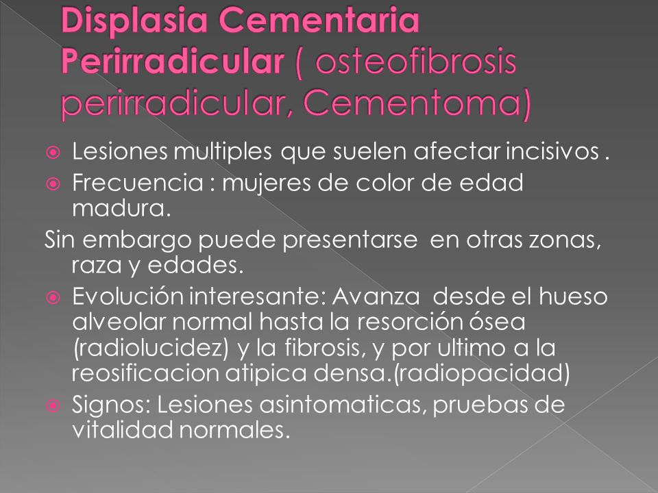 Displasia Cementaria Perirradicular ( osteofibrosis perirradicular, Cementoma)