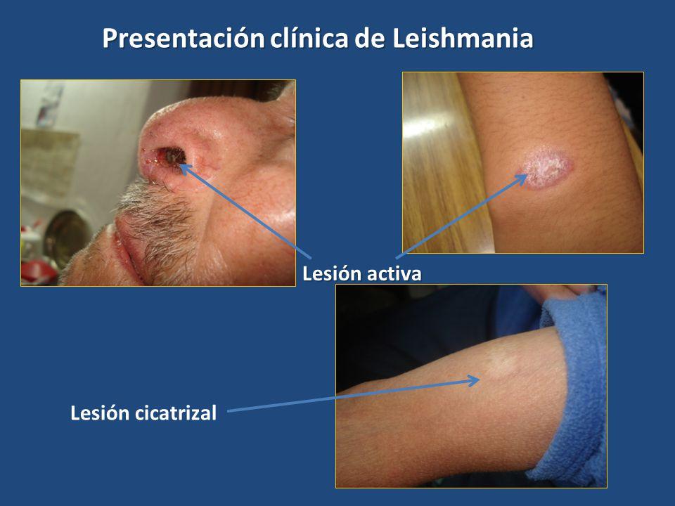 Presentación clínica de Leishmania