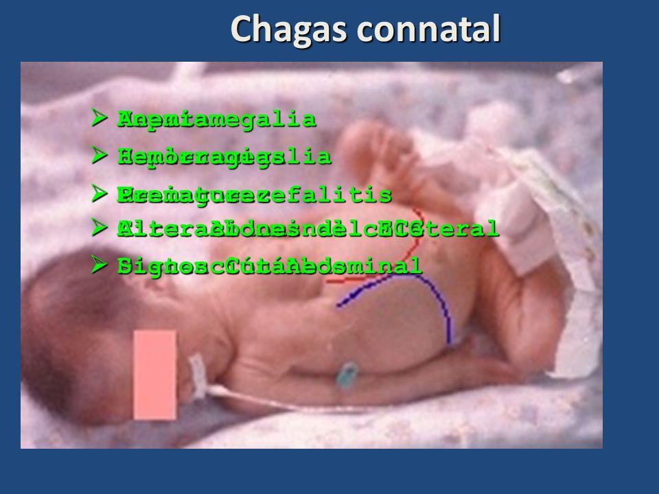 Chagas connatal Hepatomegalia Anemia Hemorragias Esplenomegalia