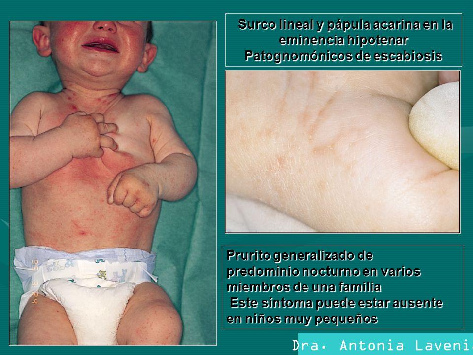 Dra. Antonia Lavenia Prurito generalizado de