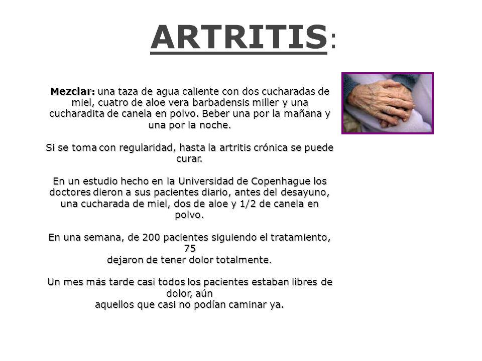 ARTRITIS: