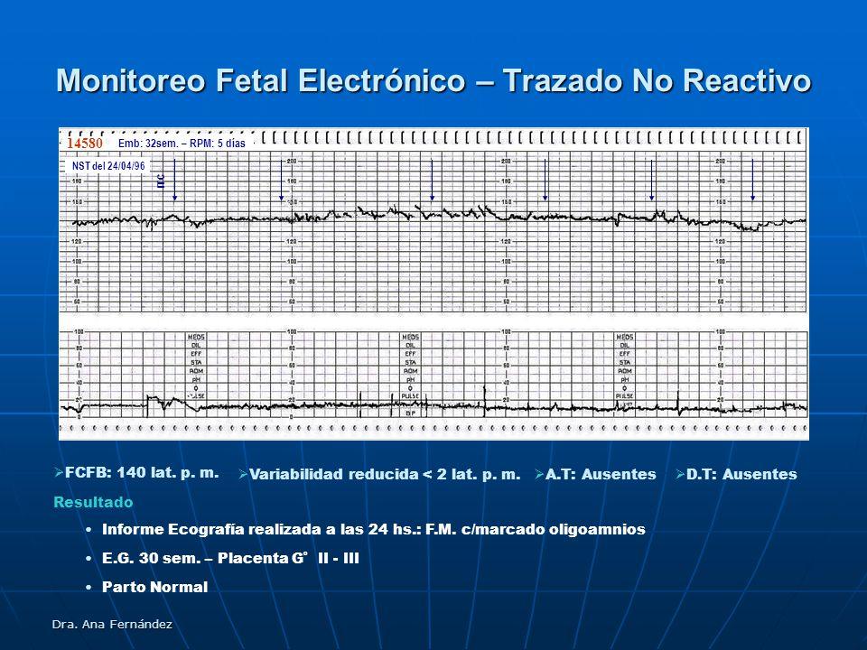 Monitoreo Fetal Electrónico – Trazado No Reactivo