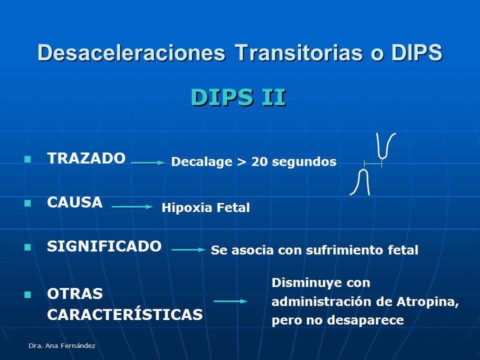 Desaceleraciones Transitorias o DIPS