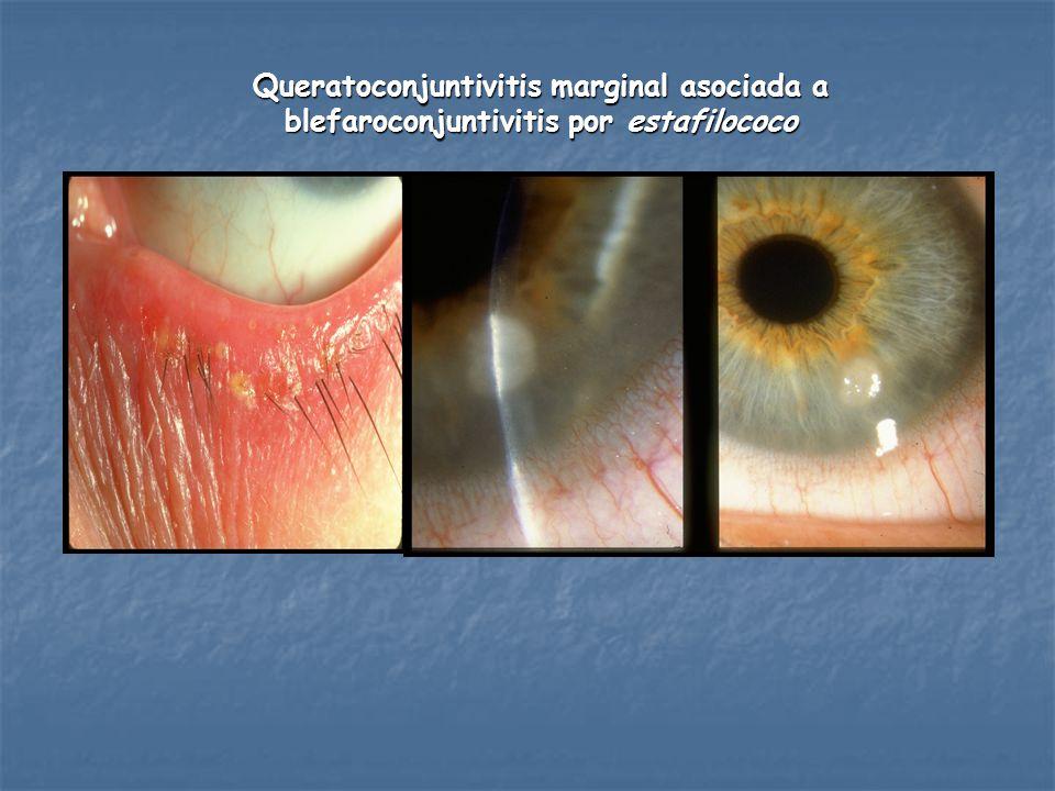 Queratoconjuntivitis marginal asociada a blefaroconjuntivitis por estafilococo