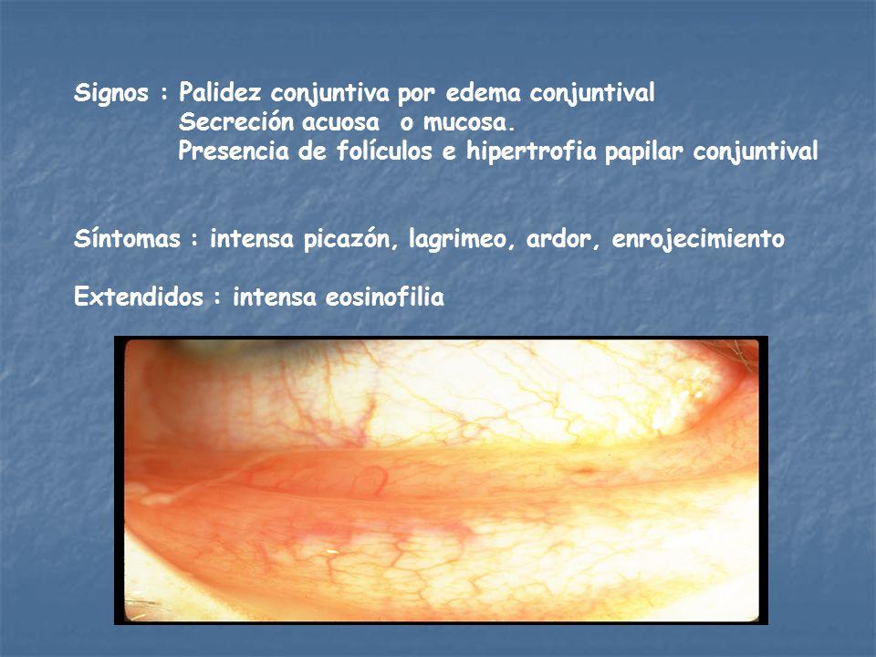 Signos : Palidez conjuntiva por edema conjuntival