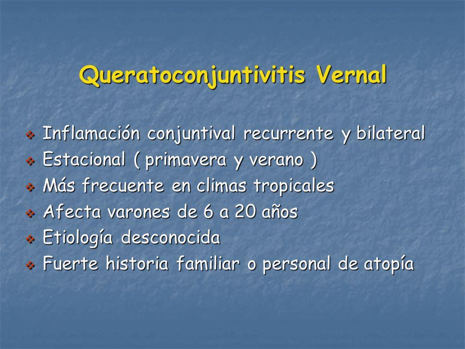 Queratoconjuntivitis Vernal