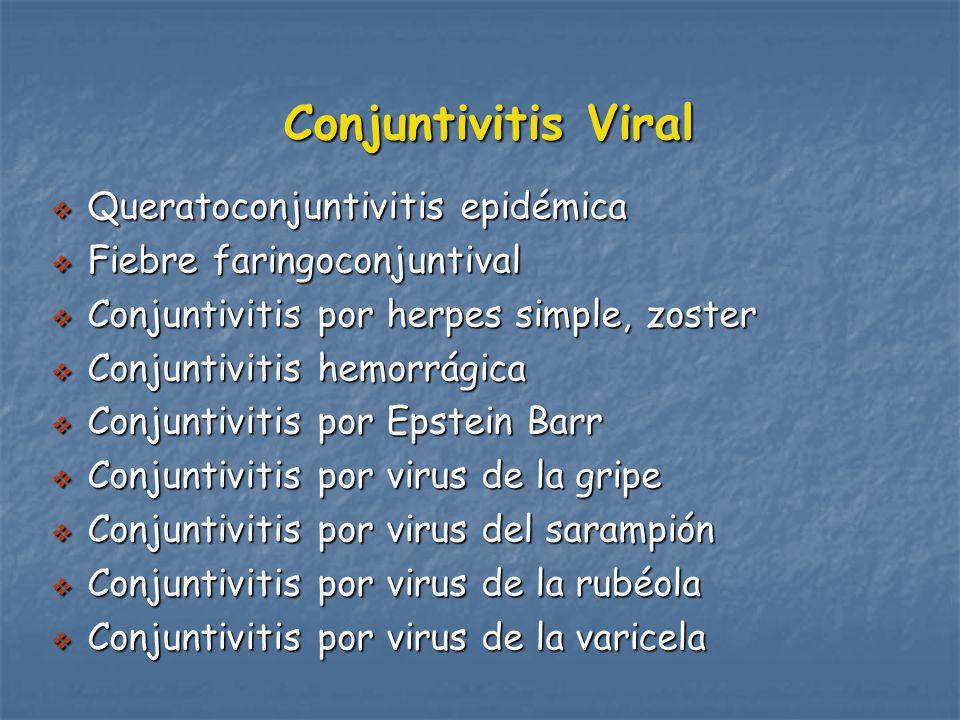 Conjuntivitis Viral Queratoconjuntivitis epidémica