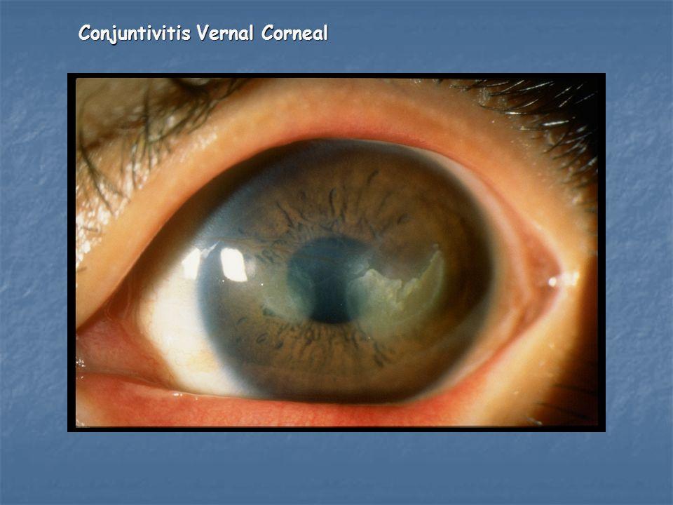 Conjuntivitis Vernal Corneal