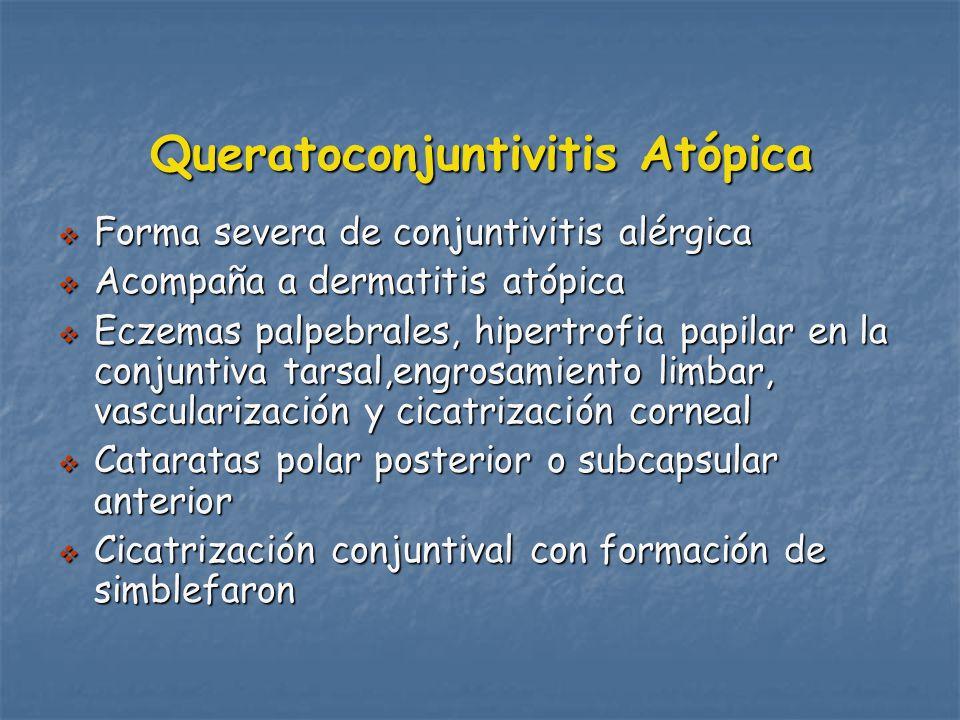 Queratoconjuntivitis Atópica