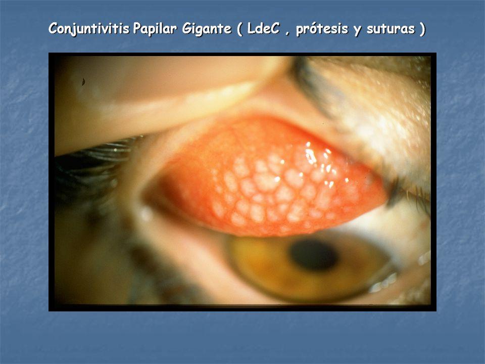 Conjuntivitis Papilar Gigante ( LdeC , prótesis y suturas )