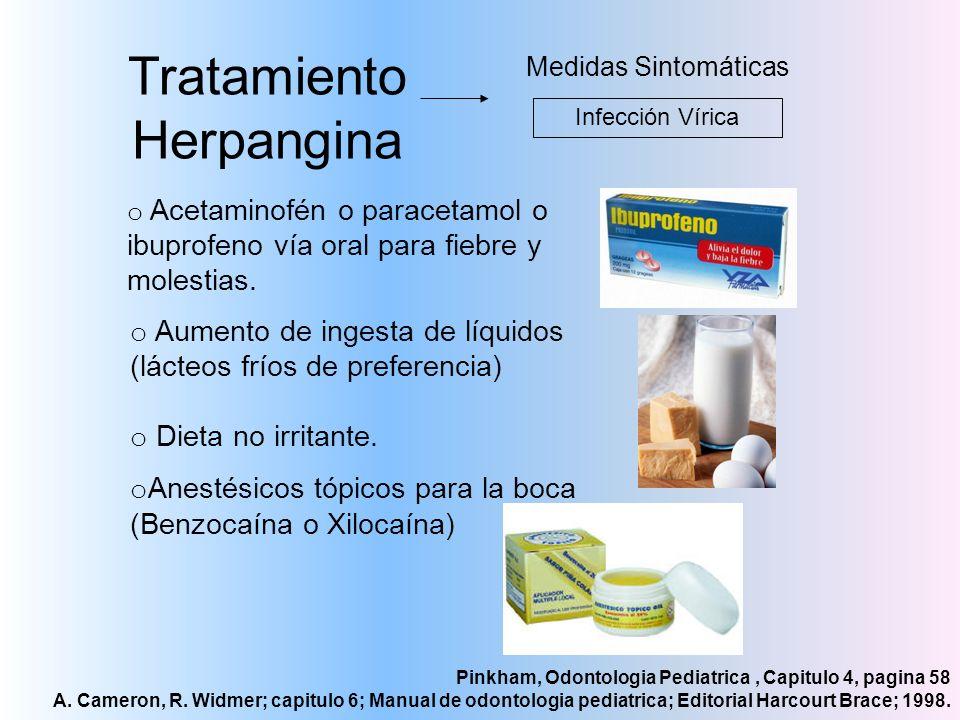 Tratamiento Herpangina