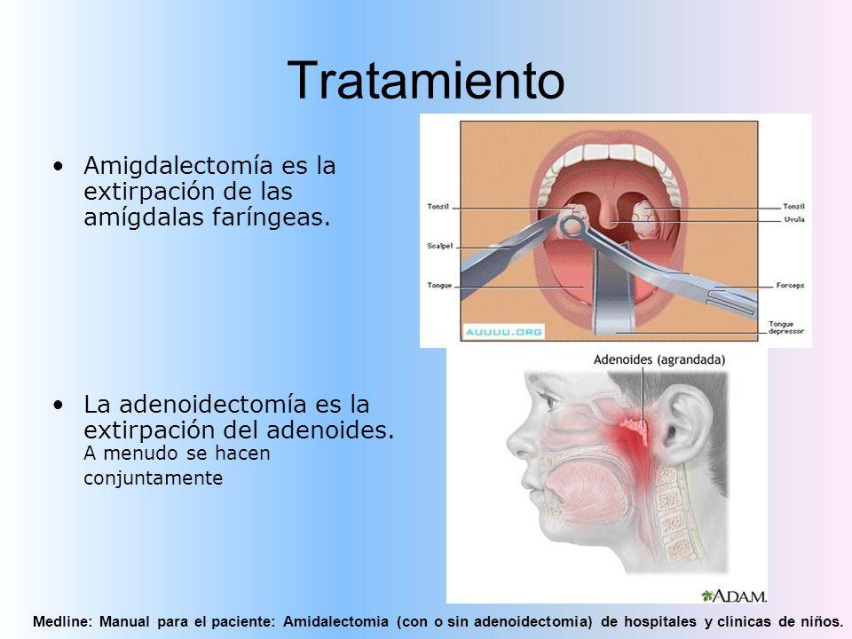 Tratamiento Amigdalectomía es la extirpación de las amígdalas faríngeas.