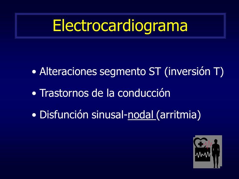 Electrocardiograma Alteraciones segmento ST (inversión T)