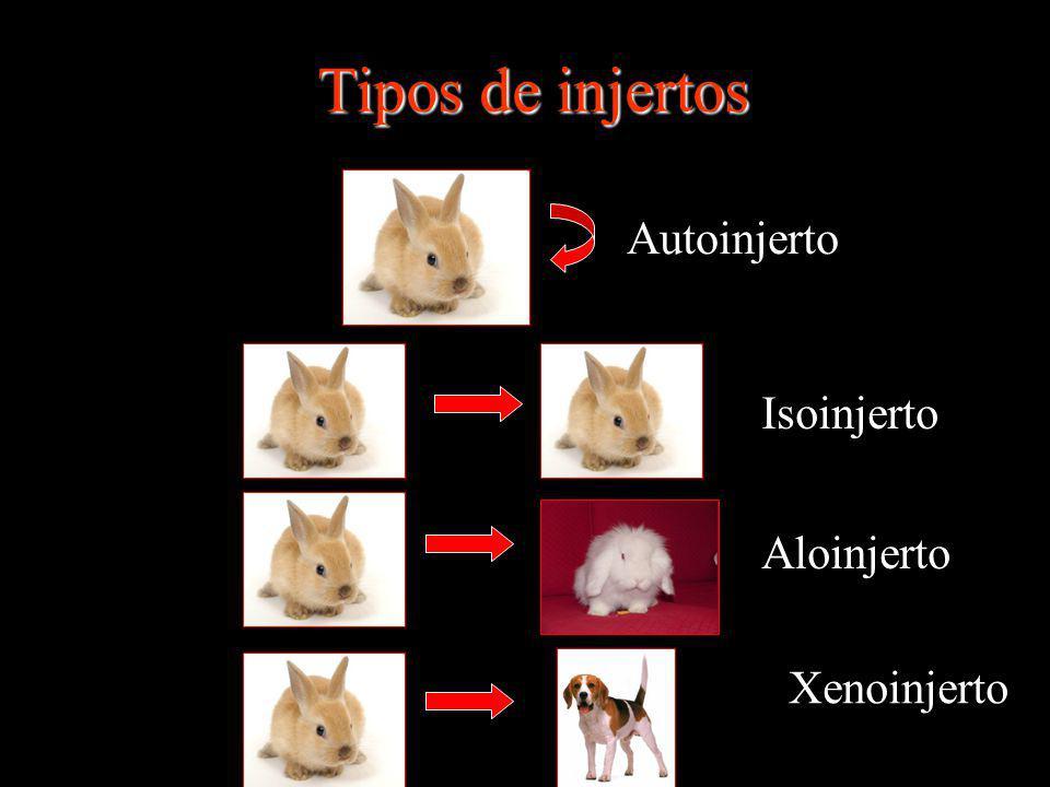 Tipos de injertos Autoinjerto Isoinjerto Aloinjerto Xenoinjerto