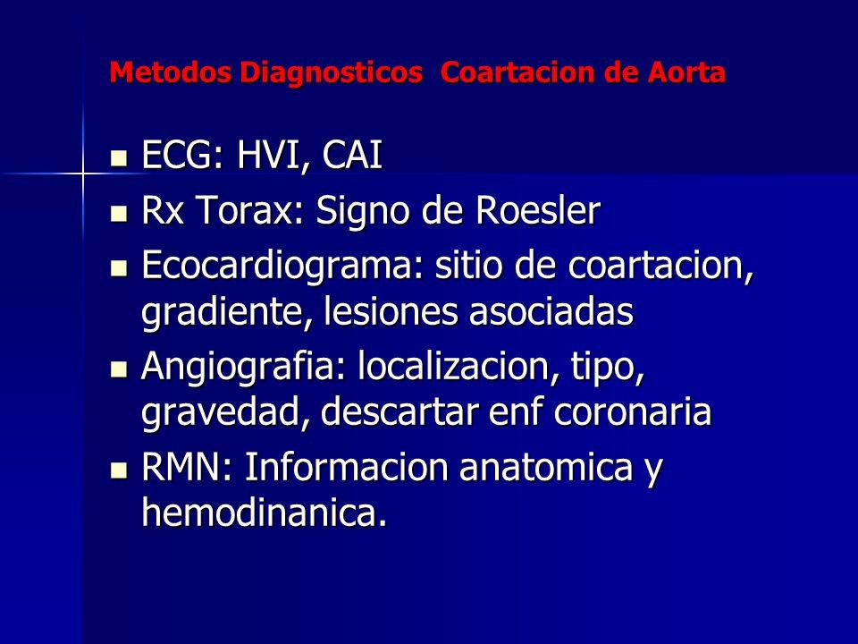 Metodos Diagnosticos Coartacion de Aorta