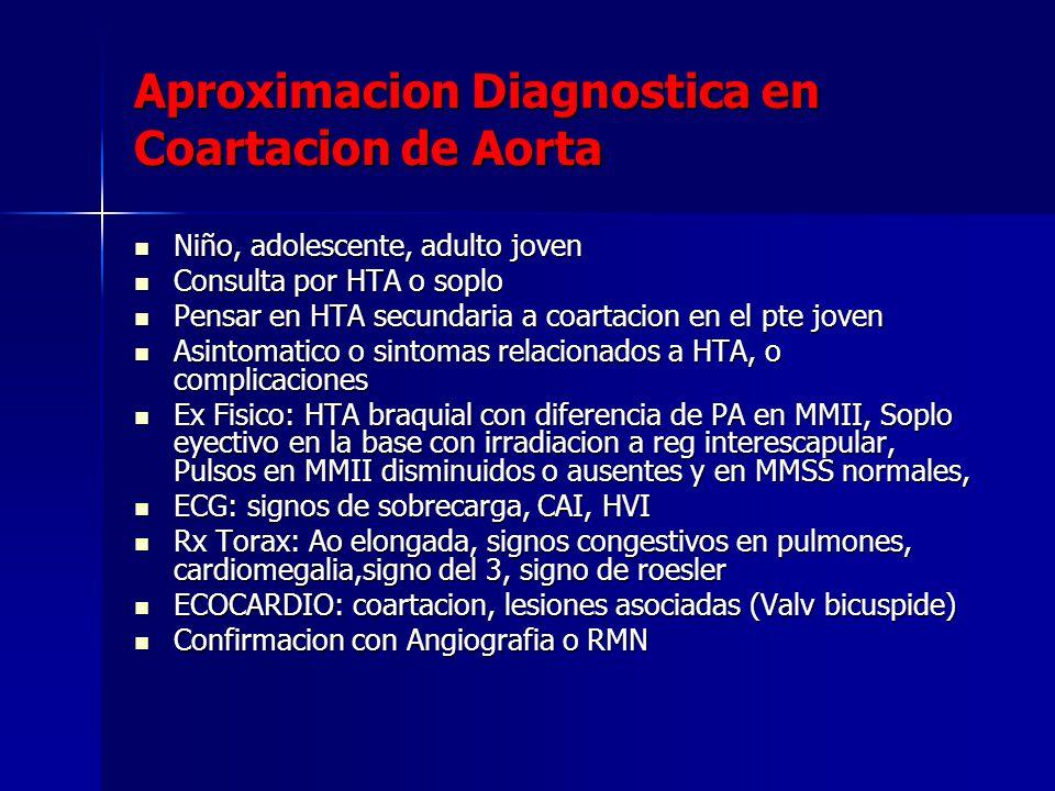 Aproximacion Diagnostica en Coartacion de Aorta