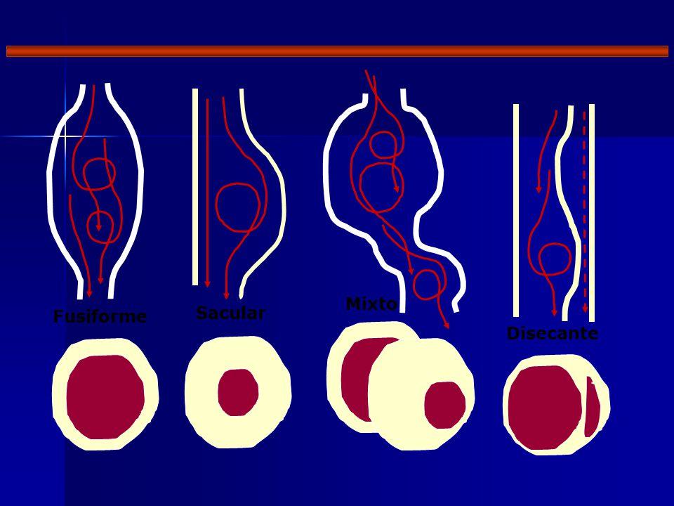 Mixto Fusiforme Sacular Disecante