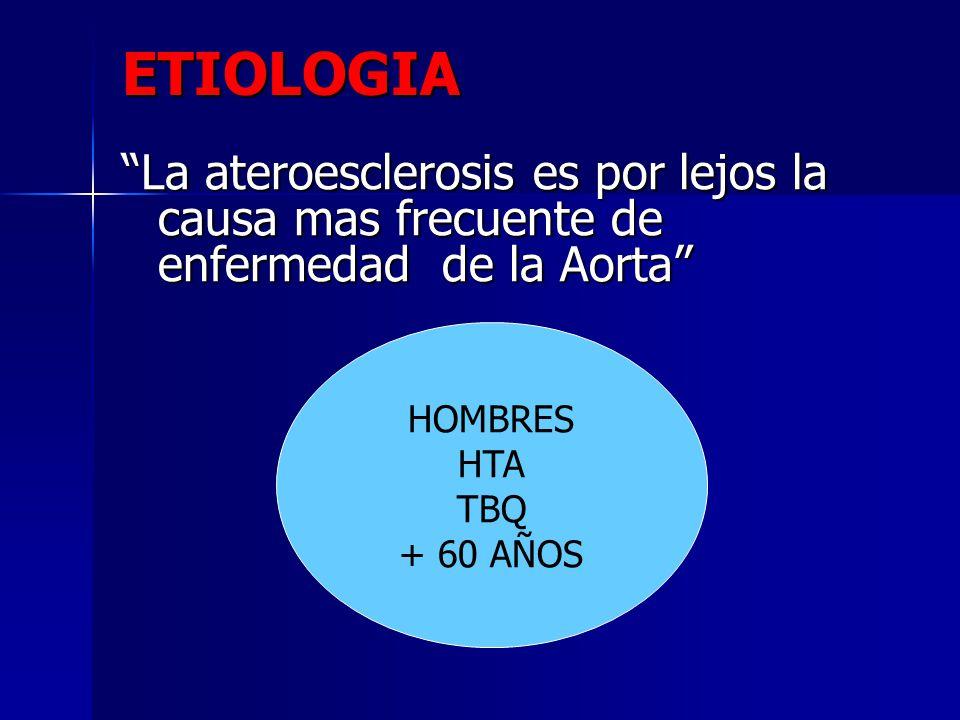 ETIOLOGIA La ateroesclerosis es por lejos la causa mas frecuente de enfermedad de la Aorta Hombres.