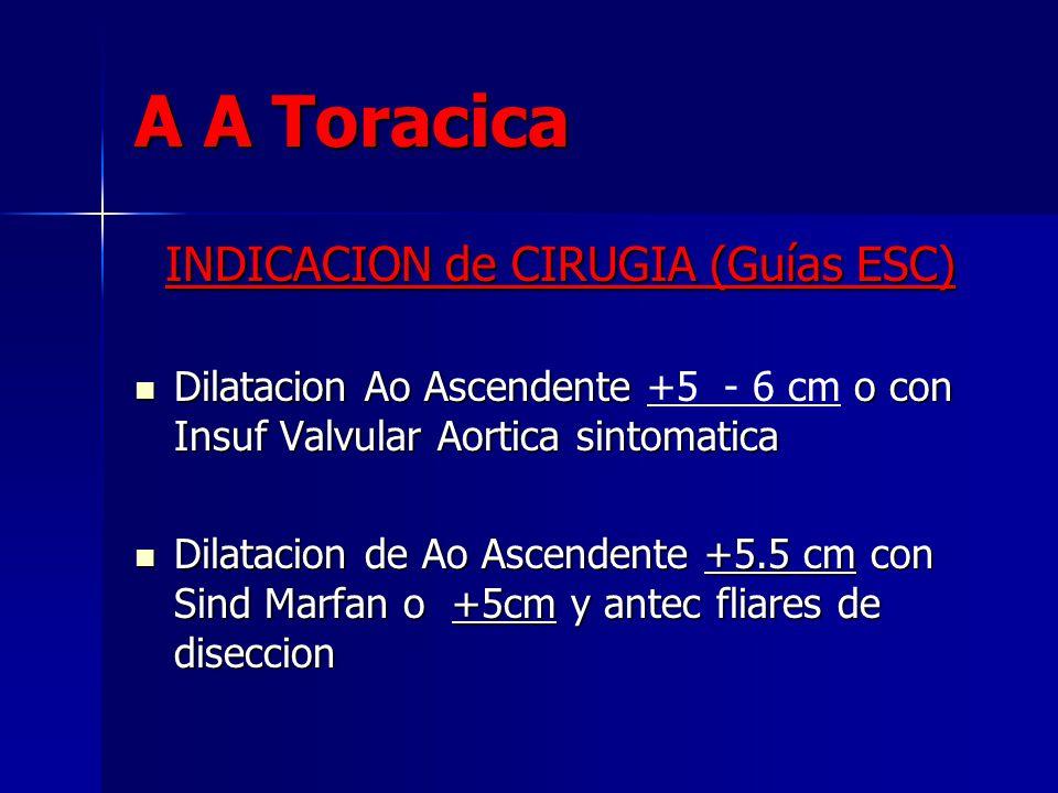 INDICACION de CIRUGIA (Guías ESC)