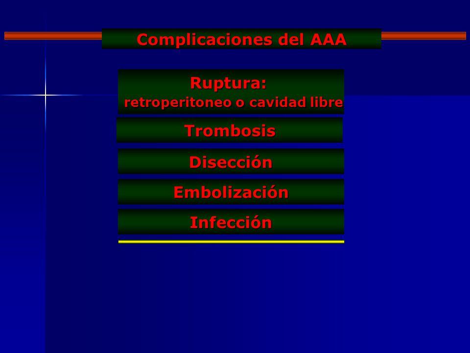 Complicaciones del AAA retroperitoneo o cavidad libre