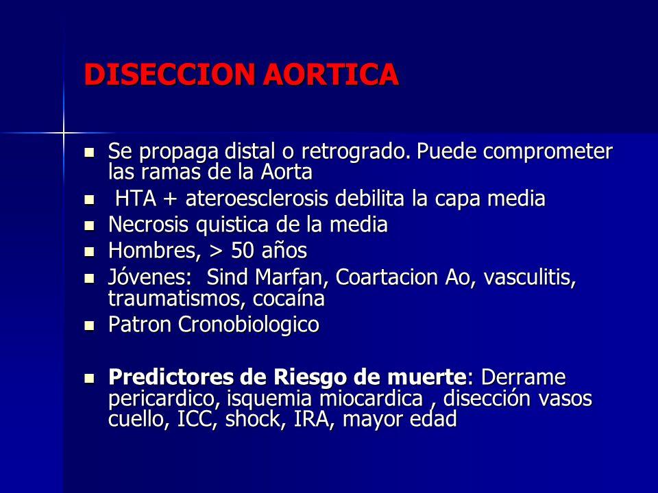 DISECCION AORTICA Se propaga distal o retrogrado. Puede comprometer las ramas de la Aorta. HTA + ateroesclerosis debilita la capa media.