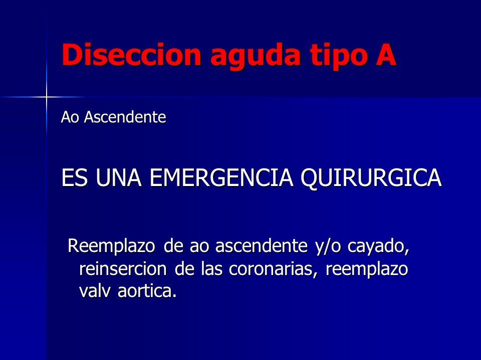 Diseccion aguda tipo A ES UNA EMERGENCIA QUIRURGICA