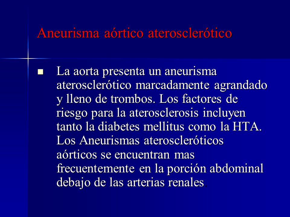 Aneurisma aórtico aterosclerótico