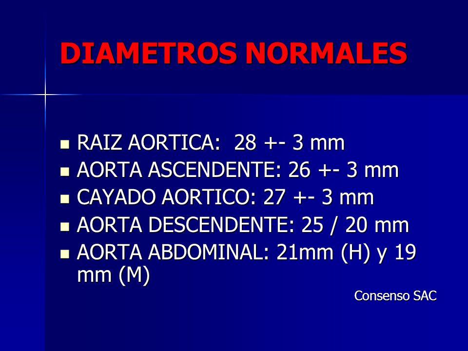 DIAMETROS NORMALES RAIZ AORTICA: 28 +- 3 mm