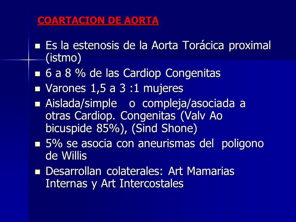 Es la estenosis de la Aorta Torácica proximal (istmo)