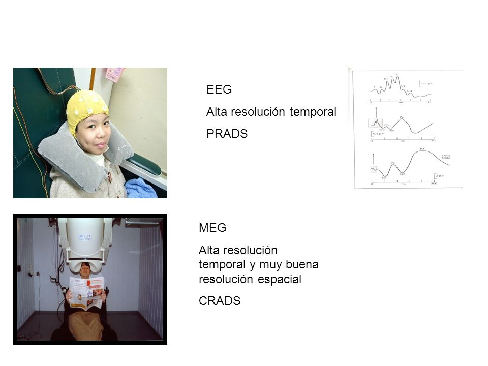 EEGAlta resolución temporal.PRADS. MEG. Alta resolución temporal y muy buena resolución espacial.