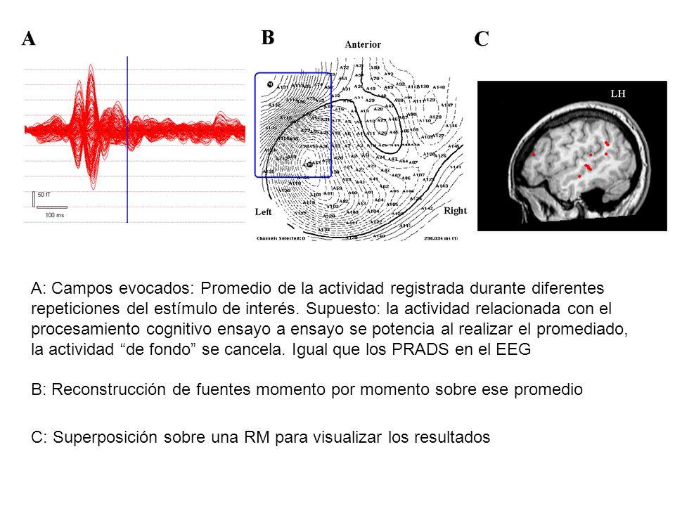 A: Campos evocados: Promedio de la actividad registrada durante diferentes repeticiones del estímulo de interés. Supuesto: la actividad relacionada con el procesamiento cognitivo ensayo a ensayo se potencia al realizar el promediado, la actividad de fondo se cancela. Igual que los PRADS en el EEG