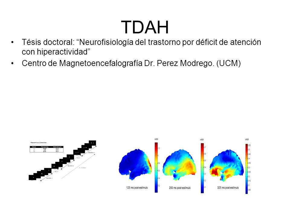 TDAH Tésis doctoral: Neurofisiología del trastorno por déficit de atención con hiperactividad