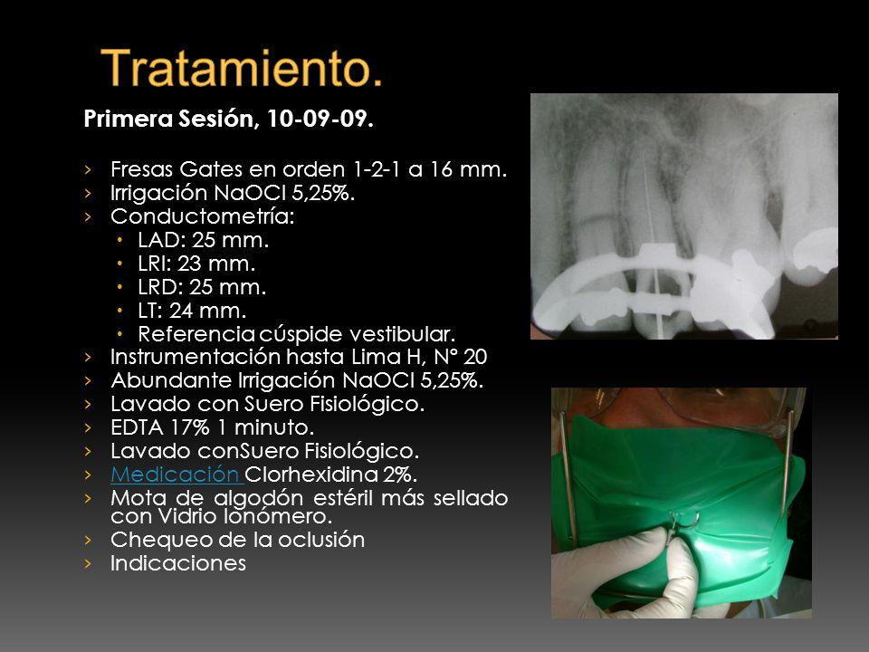 Tratamiento. Primera Sesión, 10-09-09.