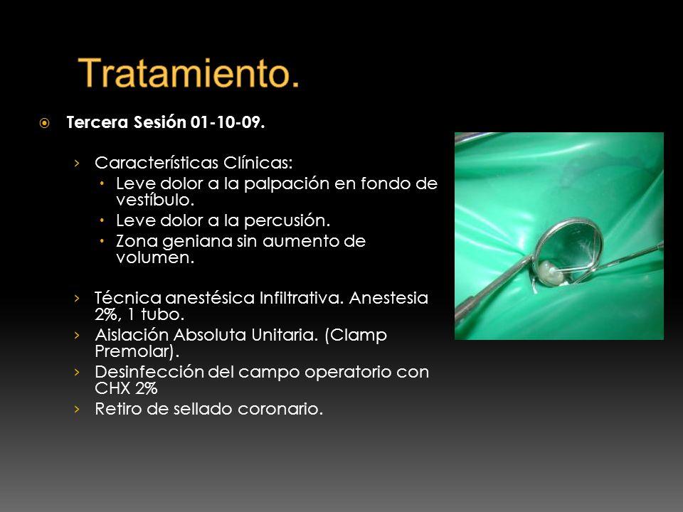 Tratamiento. Tercera Sesión 01-10-09. Características Clínicas: