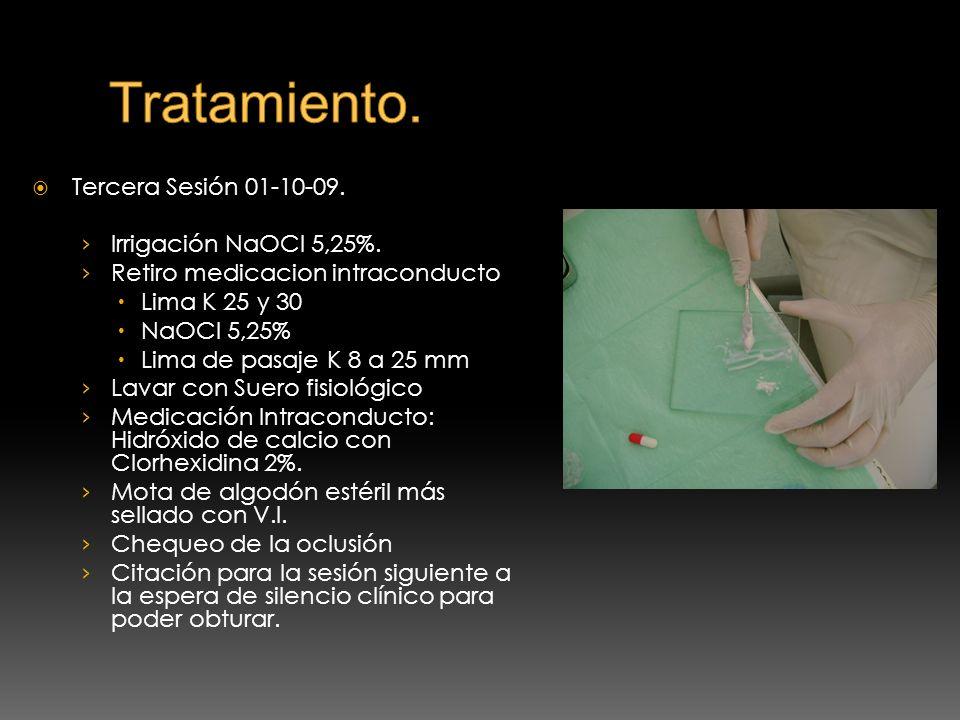 Tratamiento. Tercera Sesión 01-10-09. Irrigación NaOCl 5,25%.