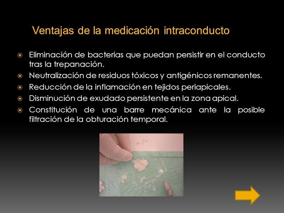 Ventajas de la medicación intraconducto